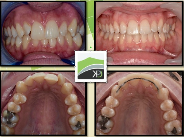 Six Month Smiles Kintore