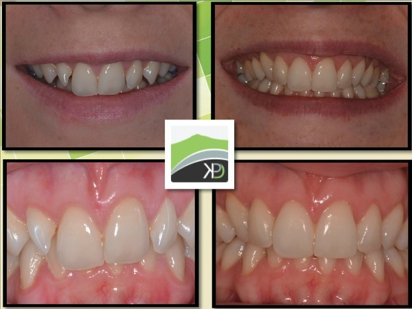 6 Month Smiles Kintore | 6 Month Smiles Inverurie
